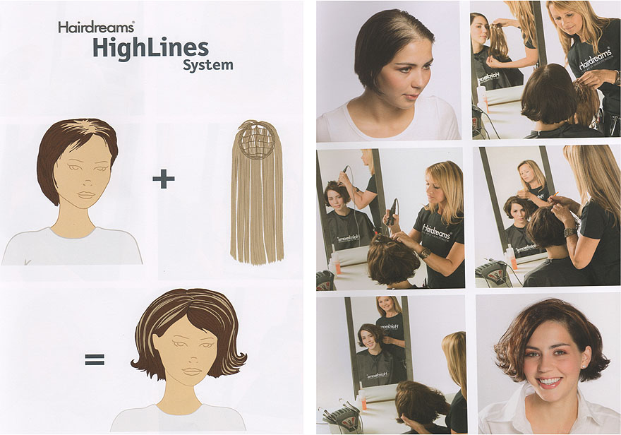 Haarverdichtung Hairdreams High Lines System