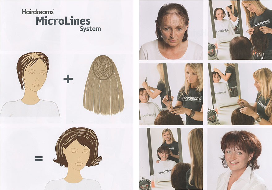 Haarverdichtung Hairdreams MicroLines System
